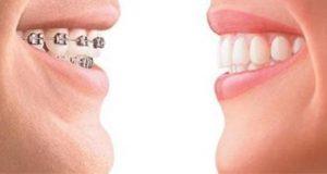 Hukum Kawat Behel Dan Gigi Palsu